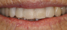 After restorative dental procedure on a patient