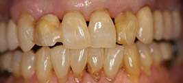 Before restorative dental procedure on a patient