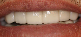 After porcelain veneers on a patient