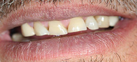 Before porcelain veneers on a patient