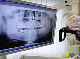 Dental x-ray on the monitor
