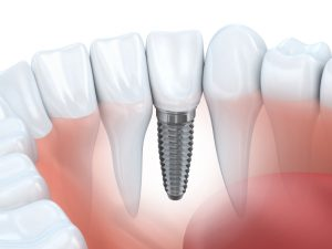 dental implants in odessa